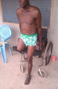 Alfred is alive thanks to NGO sponsorship